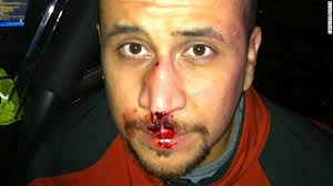 George Zimmerman's nose after getting a beating from Trayvon Martin. Photo: Reuters.